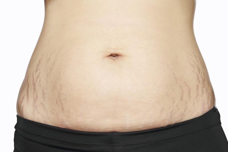 Abdominoplastyka to nie odchudzanie