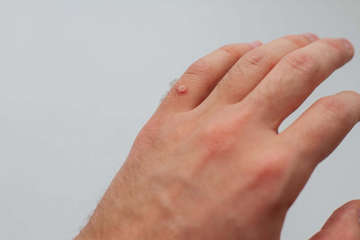 Kurzajka na dłoni - Laser frakcyjny - skuteczny sposób na brodawkisuwanie brodawek i innych zmian skórnych