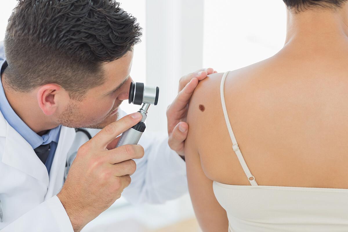 Lekarz bada zmianę na skórze - Usuwanie brodawek i innych zmian skórnych