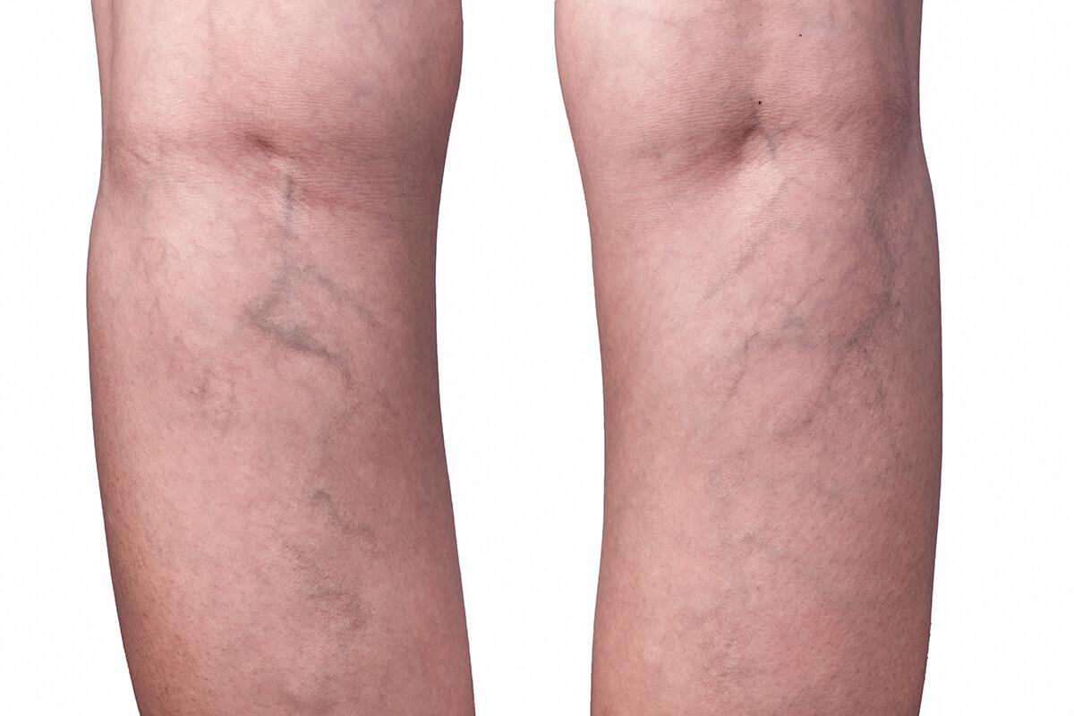 Nogi z żylakami - usuwanie żylaków - metody