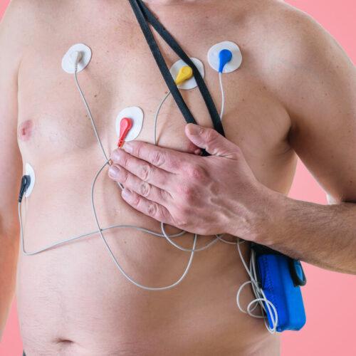 """Do czego służy Holter EKG, czyli """"torebka"""", która cię diagnozuje?"""