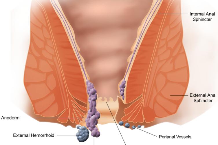Operacja hemoroidów metodą Lockhart-Mummery – skuteczna i trwała