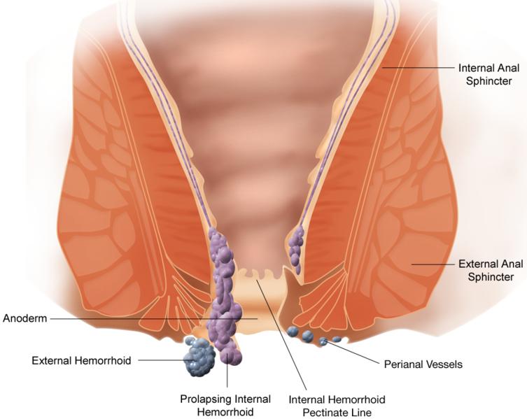Hemoroidy. operacja hemoroidów metodą Lockhart-Mummery