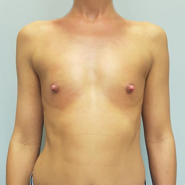 Powiększanie biustu: PRZED - na wprost