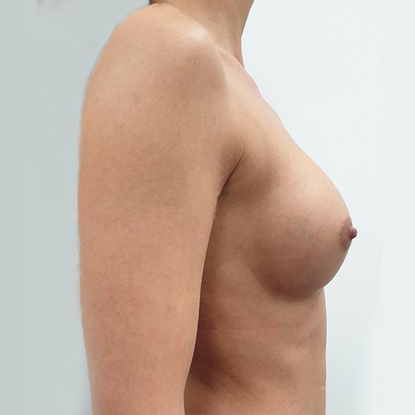 Powiększanie biustu: PO - prawy profil