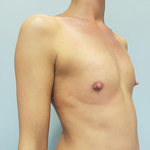 Powiększanie biustu: PRZED - prawy półprofil
