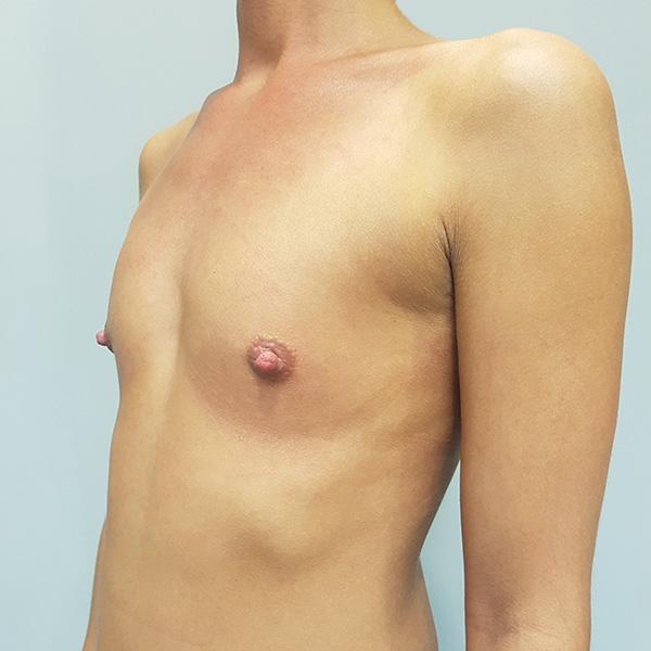 Powiększanie biustu: PRZED - lewy półprofil