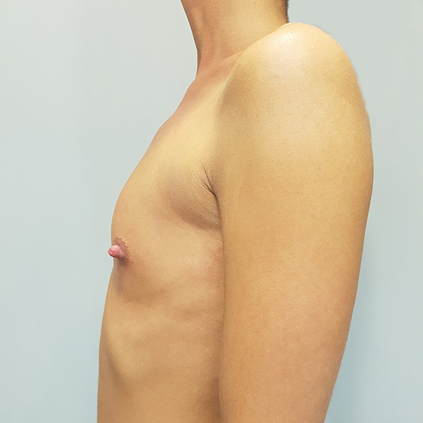 Powiększanie biustu: PRZED - lewy profil