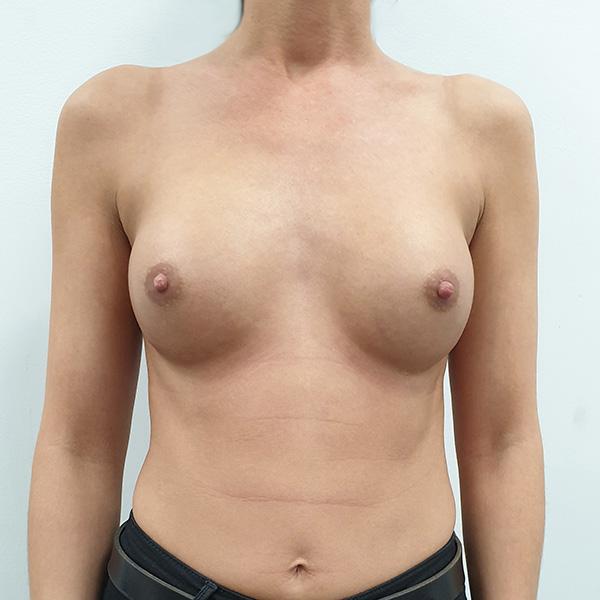 Powiększanie biustu: PO - na wprost