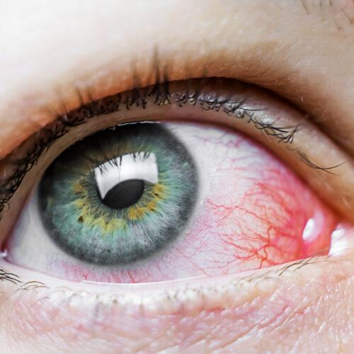 Pęknięte naczynka na bielmie oka – na co mogą wskazywać?