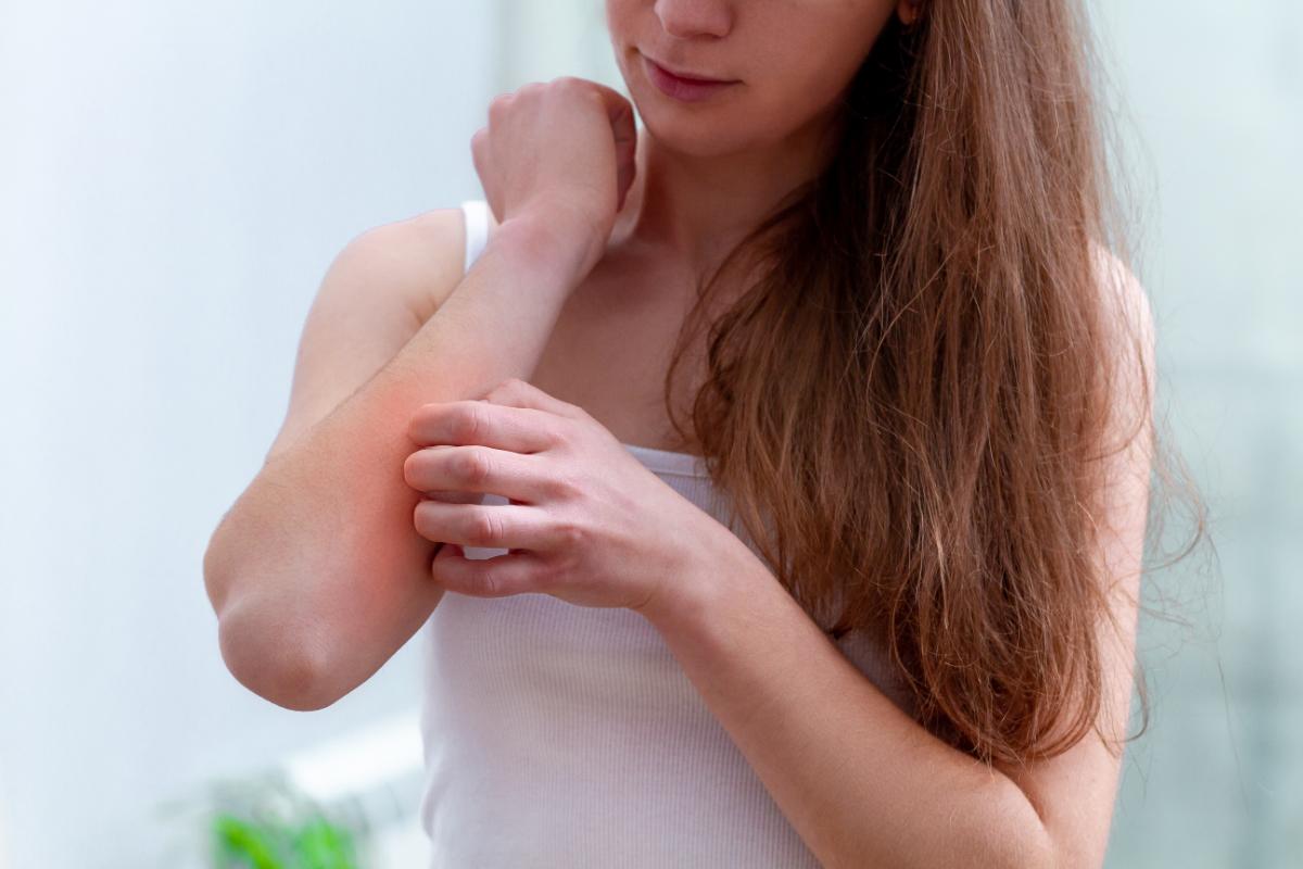 Młoda kobieta drapie się po ręce. Testy alergiczne - kiedy najlepiej zaplanować wizytę u alergologa