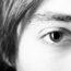Opadająca powieka – co zrobić, gdy tracisz pole widzenia