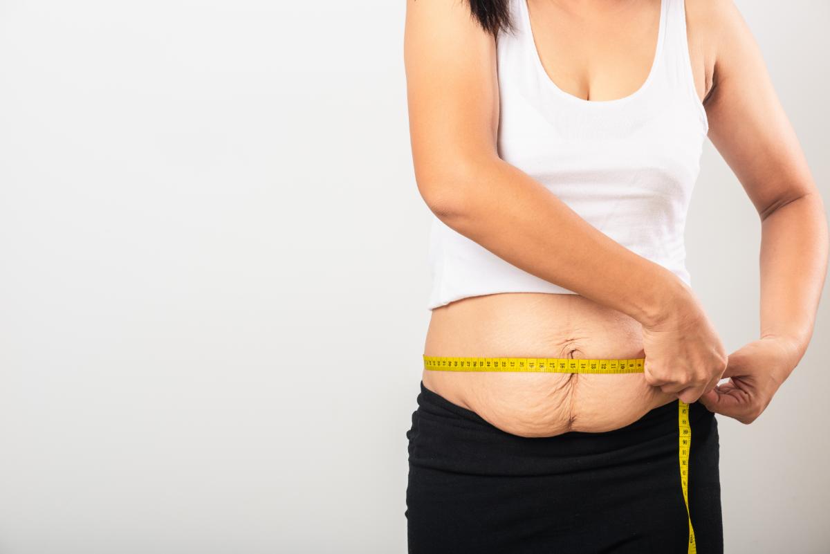 Brzuch kobiety po ciąży. Abdominoplastyka częściowa