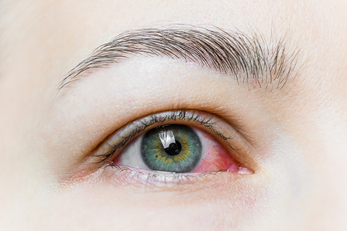 Przekrwione oko. Zapalenie spojówek. O czym może świadczyć?